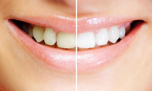 descuento estética dental